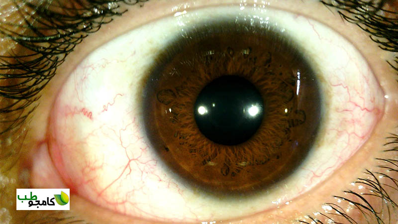 عنبیه چشم