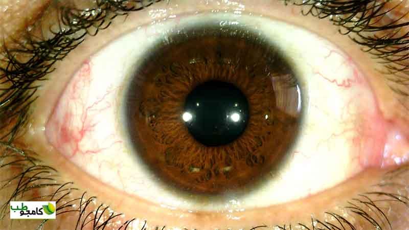 عکس چشم دستگاه عنبیه شناسی