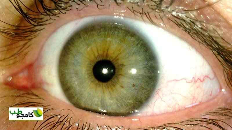 چشم در عنبیه شناسی