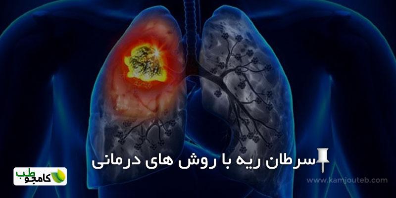سرطان ریه و روش های درمانی آن