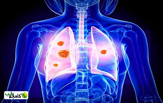 سرطان ریه 5